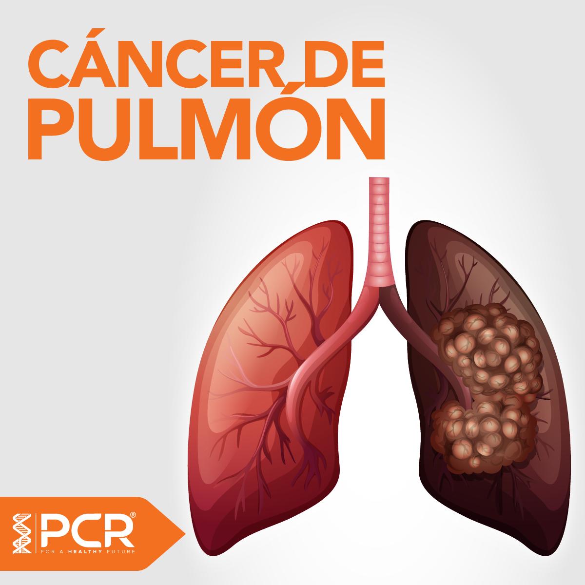 Ensayo clínico para pacientes con Cáncer de Pulmón